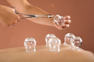 Akupunktur Kempten